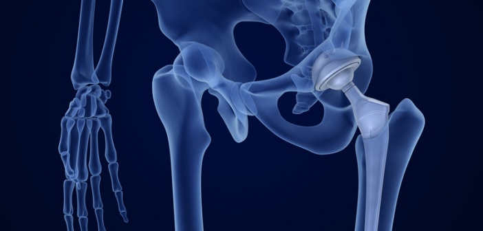 DePuy prevails in hip replacement group action