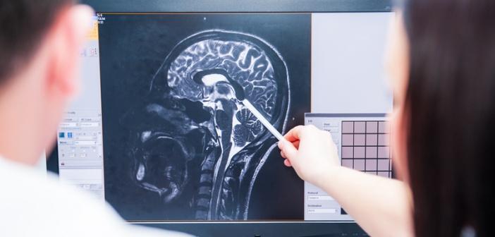 Catastrophic brain injuries